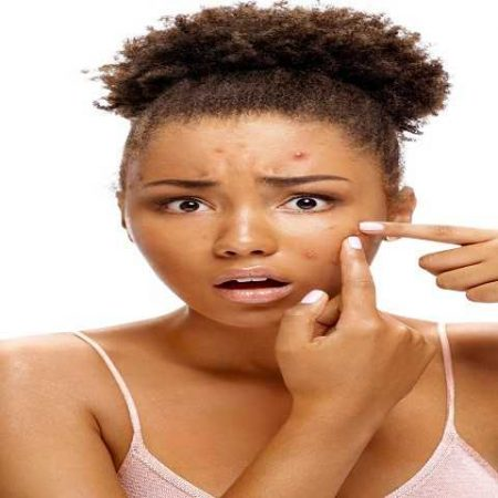 Understanding Teenage Acne – Cause and Effect