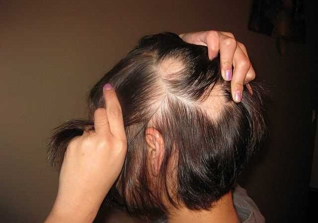 How To Stimulate Hair Growth: Tips And Tricks